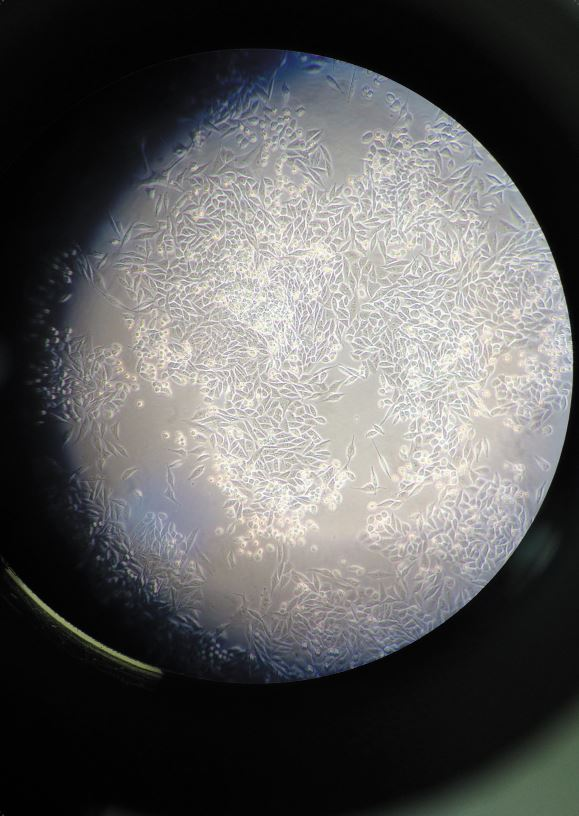 Moon cells Matthew Lee